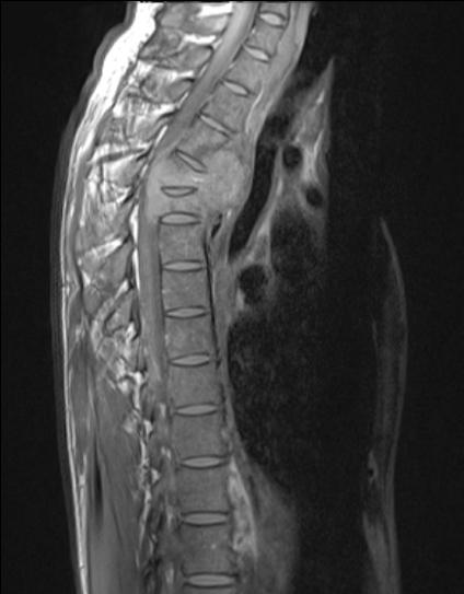 Haematopoietic tumours 3.png