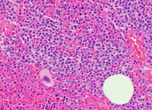 Haematopoietic tumours 6.png
