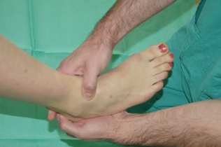 Clinical ankle 10.png