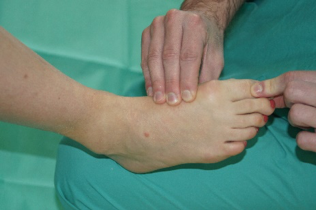 Clinical ankle 12.png