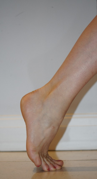 Clinical ankle 4.png