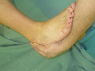 Clinical ankle 9.png