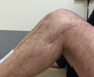 Clinical knee 13.png