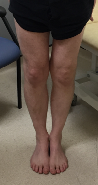 Clinical knee 3.png