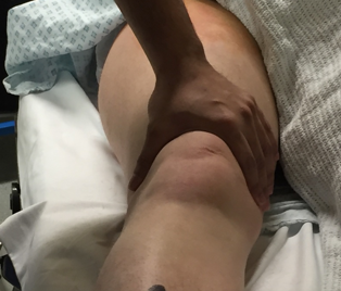 Clinical knee 31.png