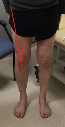 Clinical knee 4.png