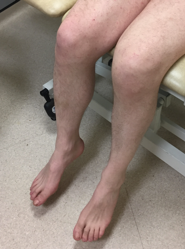 Clinical knee 6.png