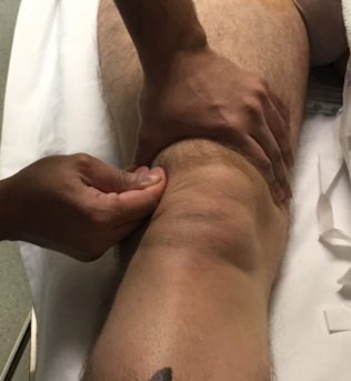 Clinical knee 8.png