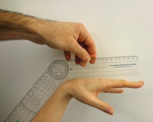 Goniometer wrist flexion.JPG