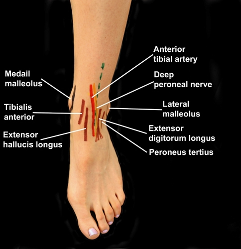 BS1SAAnt approach ankle 1.jpg