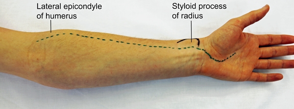 BS1SAAnt approach radius 4.jpg