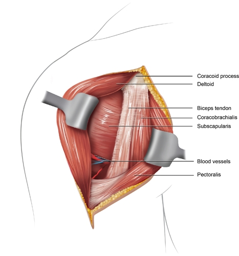 BS1SAAnt approach shoulder 3.jpg