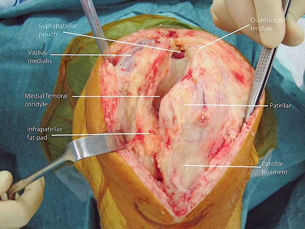 BS1SAAnteromedial approach knee 1.jpg