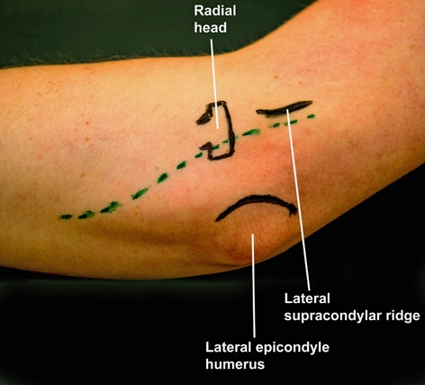 BS1SALateral approach elbow 1 .jpg