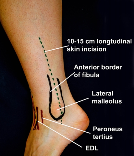 BS1SALateral approach fibula 1.jpg