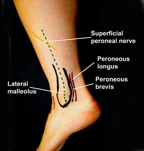 BS1SALateral approach fibula 2.jpg