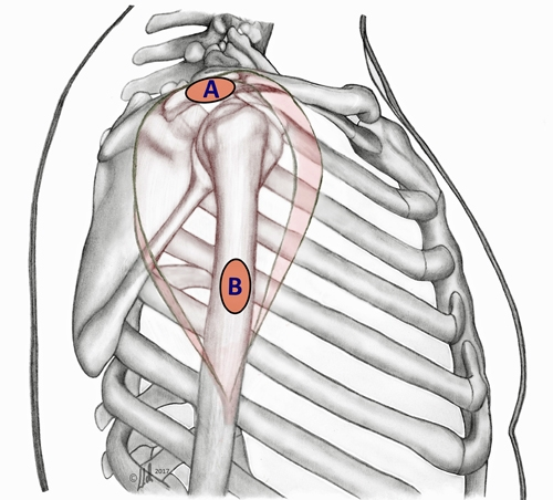 BS1SALateral approach shoulder 2.jpg