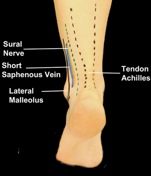 BS1SAPostlat ankle1.jpg